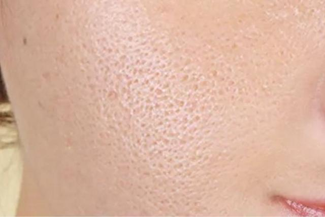 getInterUrl?uicrIvZQ=38d22d10a5ad9d74c720bf297148487d - Large pores are ugly and old, beautician:learn 3 methods, let you easily have a high value