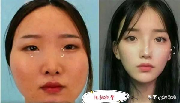 getInterUrl?uicrIvZQ=cffda2d11b6b2be508c19b48f19f632c - The woman thinks she is ugly and spends 300,000 facelifts.