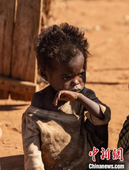 WFP executive director calls attention to the hungry people in Madagascar